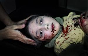 Syrian Civil War girl